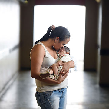 Baby in Brazil born with microcephaly, caused by Zika virus.