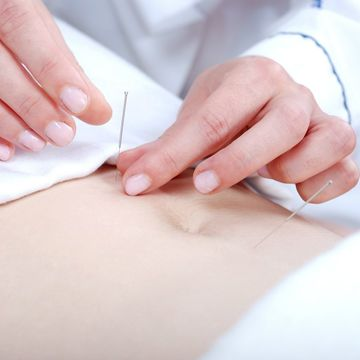 Did Acupuncture Help Me Get Pregnant?