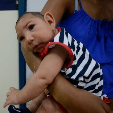 Zika Holds 1 in 100 Risk of Microcephaly