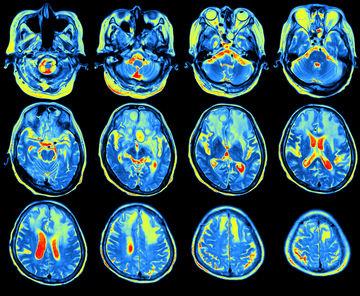 MRI and autism study